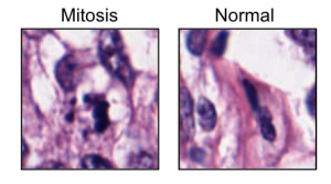 Mitosis vs. normal cell. Used with Anika Cheerla's permission